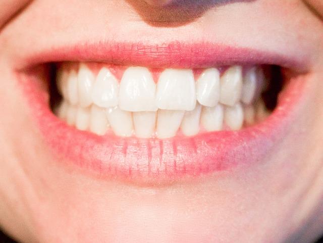 歯垢(プラーク)・歯石除去で歯がスッキリ!